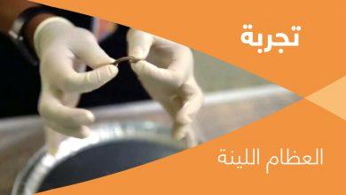Photo of تجربة: العظام اللينة